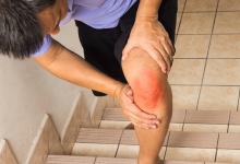 Photo of Serious Health Issue (Joint Pain): Related Health Issues
